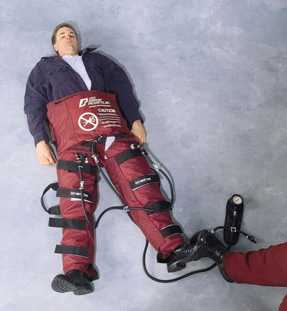 Trauma Airpants With Pressure Relief Valves, Pump Assembly, Case, Adult - Model L602, Each
