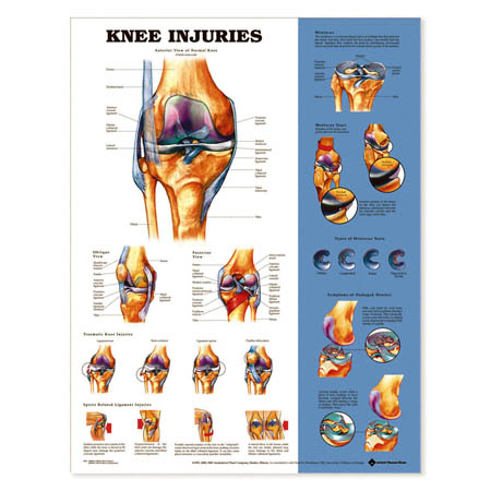 Knee Injuries Chart - Model 1587798913, Each