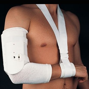 Short Humerus Fracture Brace - Medium - Model 55144502
