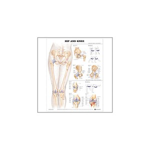 Hip and Knee chart 2nd Edition, Each